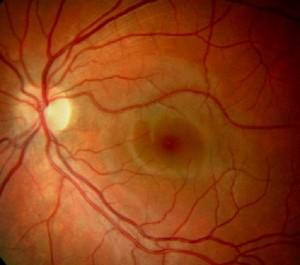 age-related-macular-degeneration-1