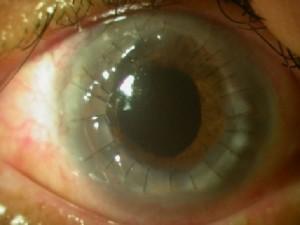 corneal-surgery-2