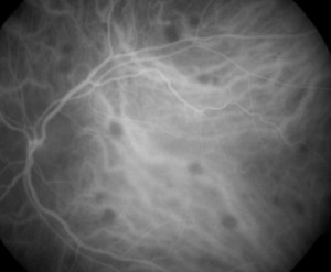 indocyanine-green-angiography-2