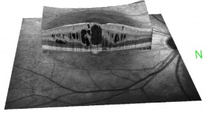 optical-coherence-tomography