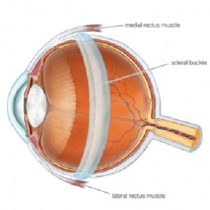 scleral-buckle